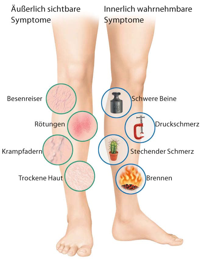 venentherapie-symptome