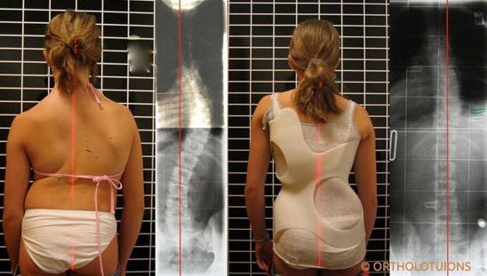 versorgungssicherheit-bei-idiopathischer-skoliose-