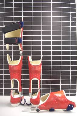Oberschenkelcarbonorthesen-Becken-Bein-Orthesen-01