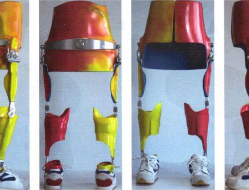 Oberschenkelcarbonorthesen und Becken-Bein-Orthesen