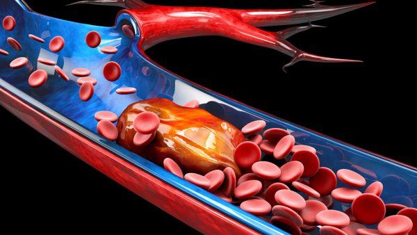 Was ist Thrombose?